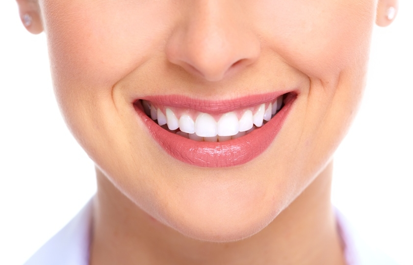 What is the Hollywood smile all about?